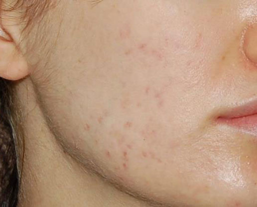 After-salicylic peel series for acne