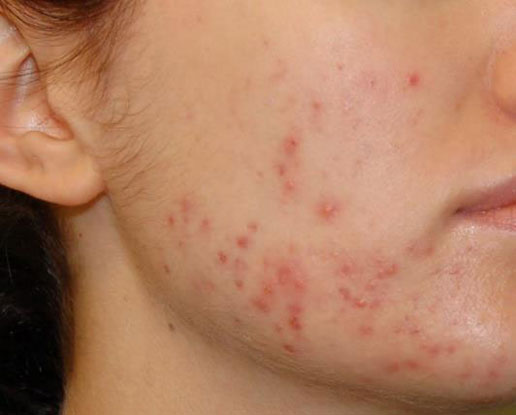 Before-salicylic peel series for acne