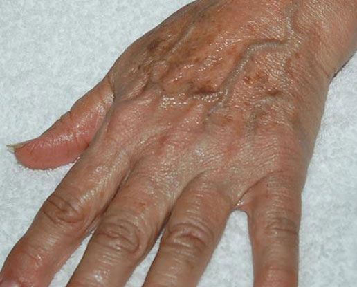After-hand peel series