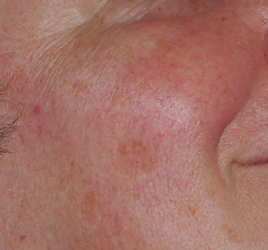After, post 2 treatments and use of rosacea skin care products