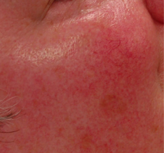 Before-treatment of severe rosacea
