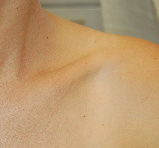 After-removal of small red spots (cherry angiomas) from shoulder