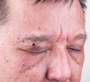 suspicious mole under man's eyebrow