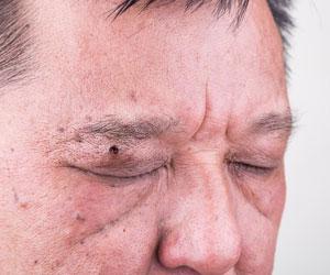 suspicious looking mole under man's eyebrow
