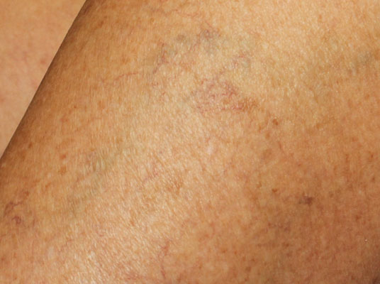 After-Sclerotherapy for removal of spider veins