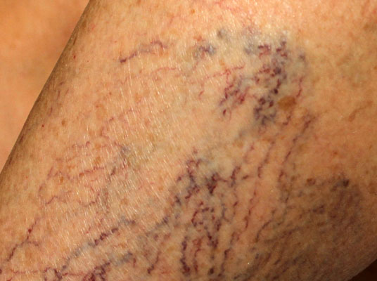 Before-Sclerotherapy for removal of spider veins