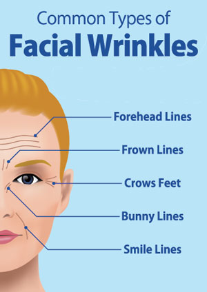 common types of facial wrinkles